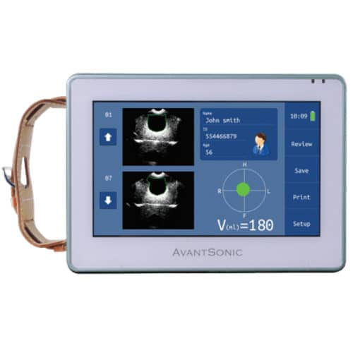AvantSonic Z3 Bladder Scanner